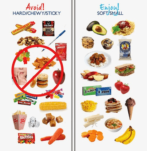 diagram list of foods to avoid for patients with braces and preferred foods that are ok for patients with braces